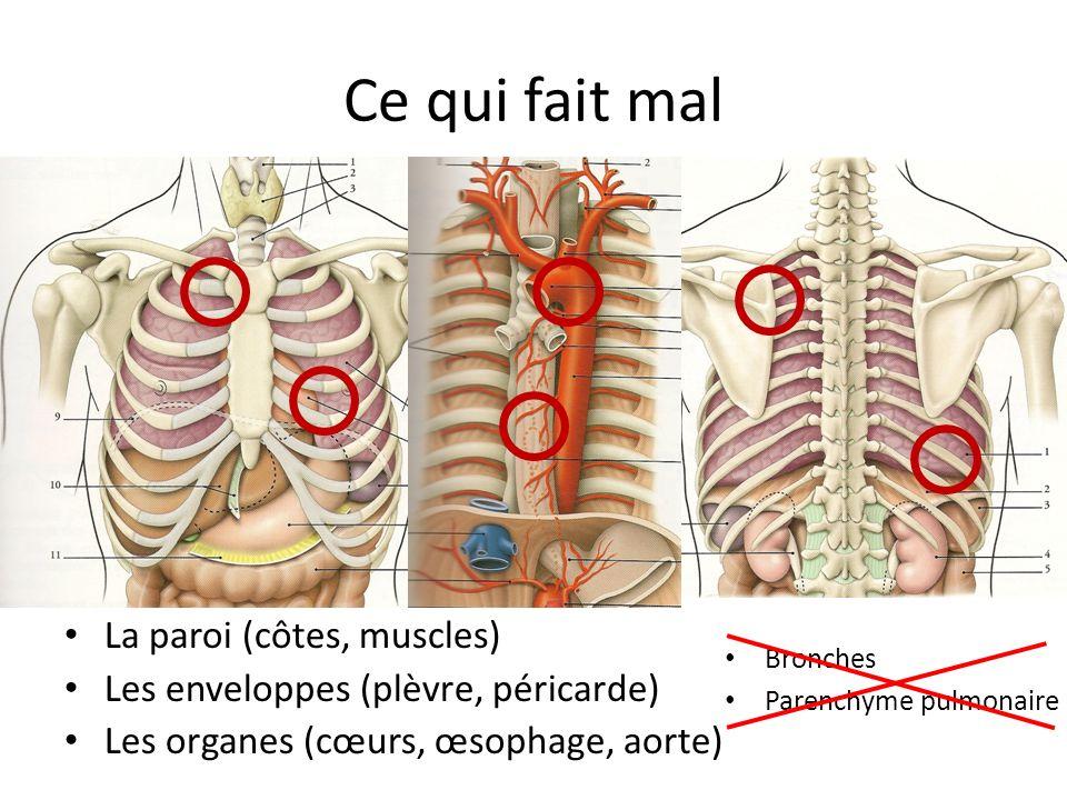Douleur thoracique HENON Pierre, CCA USIC. - ppt video ...