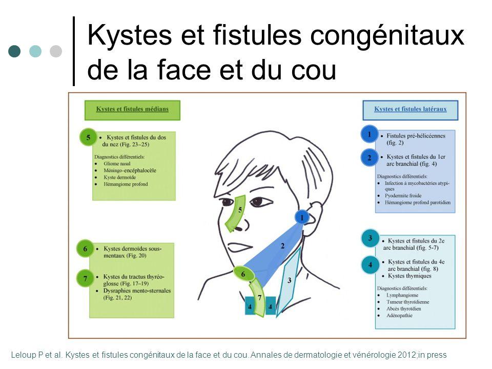 embryologie de la face